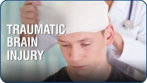 Do I Need a Lawyer to Handle my Traumatic Brain Injury Claim?